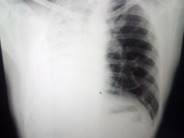 I'm Struggling With multiple drug resistance Tuberculosis please help