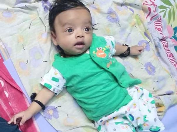 3 months old baby of madhusudan needs your help fight Biliary Atresia