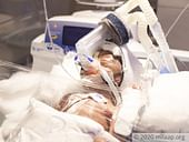 This Mother Might Lose Her Newborn Twins Even Before She Sees Them