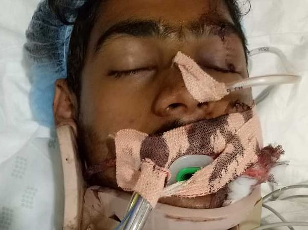 Support  Mujaheed Recover From Accidental Injuries