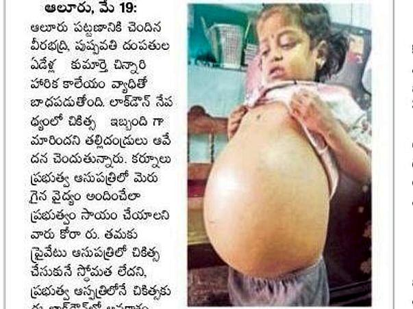#SaveHarika to Undergo Liver Transplant