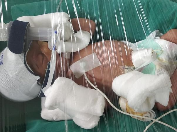 Open Heart Surgery. Twin Babies are born Preterm , Please Help