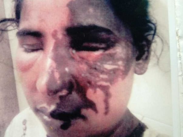 Support Acid Attack Victim Alina Baig For Her Education