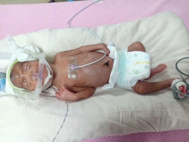 24 Days Old Baby Asna  Needs Your Help Fight NICU Care