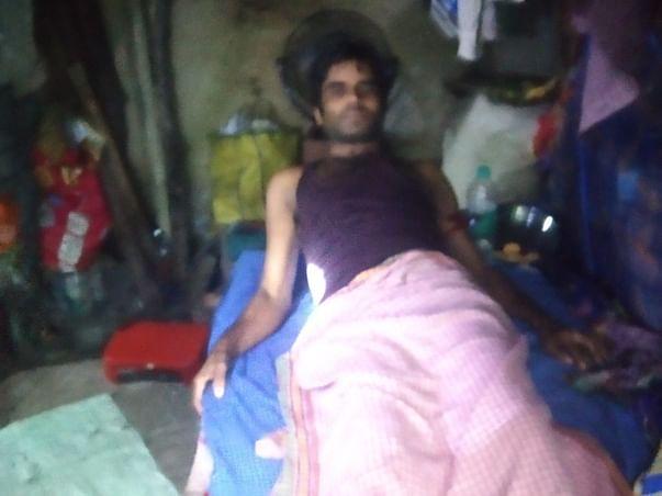 Gulab Prajapati Needs Your Urgent Support In Fighting Leg Injury