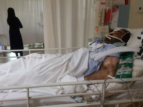 Help My Uncle Fight Severe Sepsis