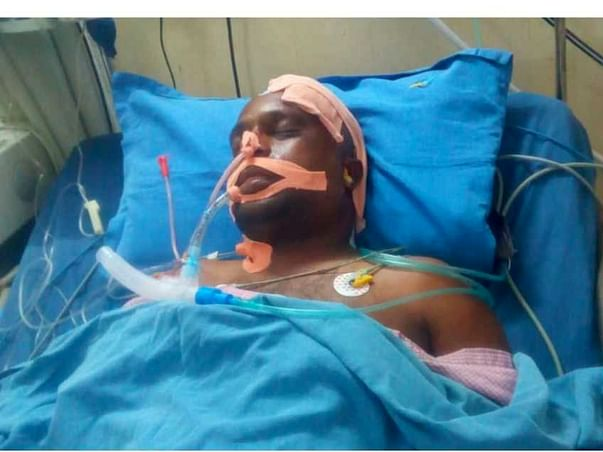 Support Surya Narayana Murthy Recover From Accident Head Injury