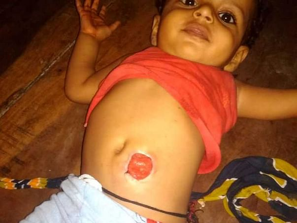 Support Kunal Kumar to recover from Anal atresia