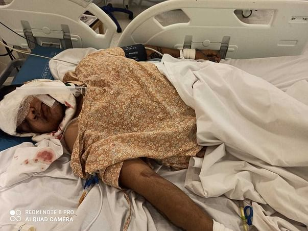 Help my friend Ritesh Singh Dhanik fight Road traffic accident with polytrauma