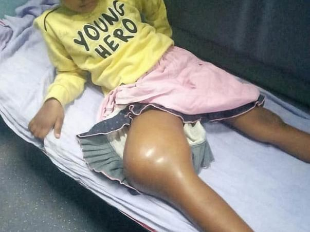 7 Years Old Sargam Kumari Needs Your Help To Recover From Bone Cancer
