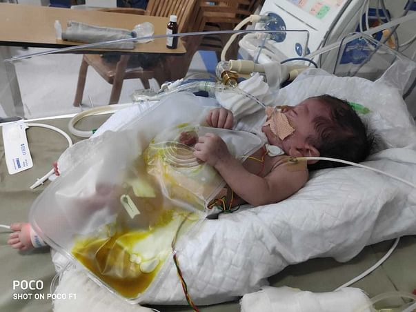 """Baby of Heena""has gone through multiple interstine surgeries,Help Her"