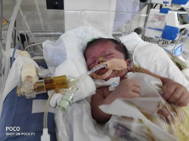 """Baby of Heena""has gone through multiple interstine surgeries,Help Her"