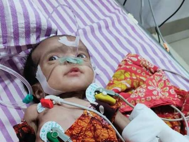 2 months old Samridhi Saha needs your help fight Arterioventricular septal defect