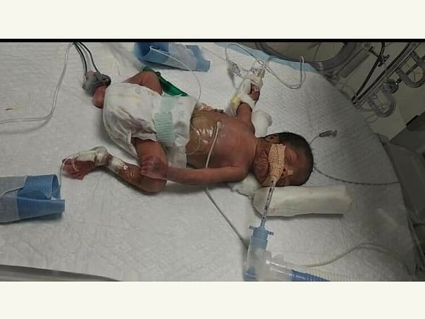 My One And Half Months Daughter Is Struggling With Preterm Issues, Please Help Her