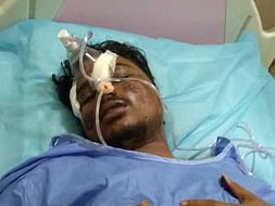 My Brother Needs Your Urgent Support In Fighting Accident (Head Injury)