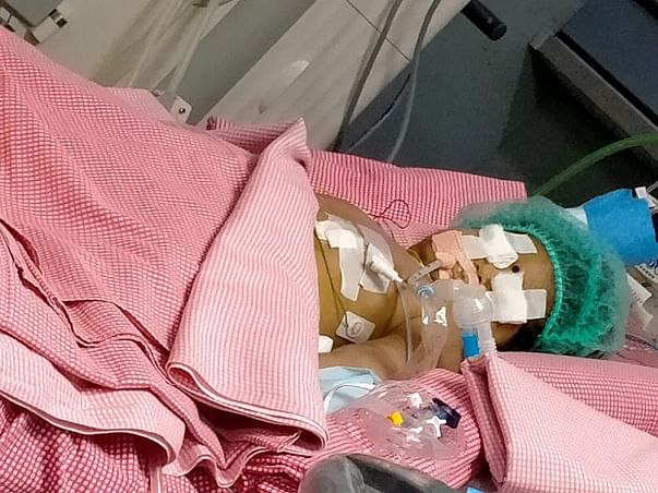 9 months old ANJANEYA DEVANSH fight Chronic lung disease, Sepsis-septic shock, Acute Kidney Injury, Acute Liver Injury, DIC, Cardiac arrhythmia