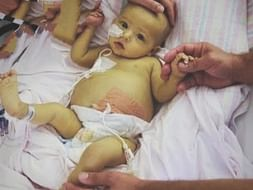 Baby Parul needs urgent Liver Transplant within 30 days