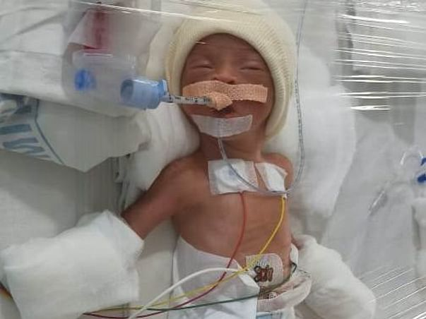 24 years old Ramesh needs your help fight Complications of Pre-mature Birth of Baby
