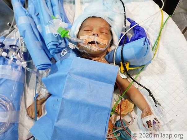 1-Month-Old Baby Girl's Father Needs Help To Save Her Life