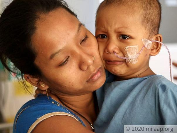 1 Year Old Sunanda Singha Needs Your Help Fight Acute Myeloblastic Leukemia
