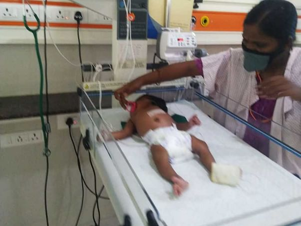NO INCOME PARENT,Baby of Ms.Abirami fight Meconium aspiration syndrome