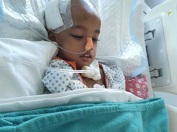 3 Years Old Aarohi Das Needs Your Help Recover Choroid Plexus Hyperplasia