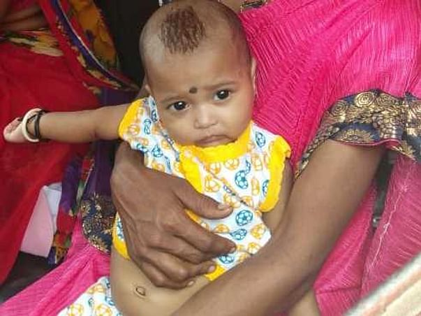 6 Months Old Ananya Kashinath Modak Needs Your Help Fight Blood Cancer