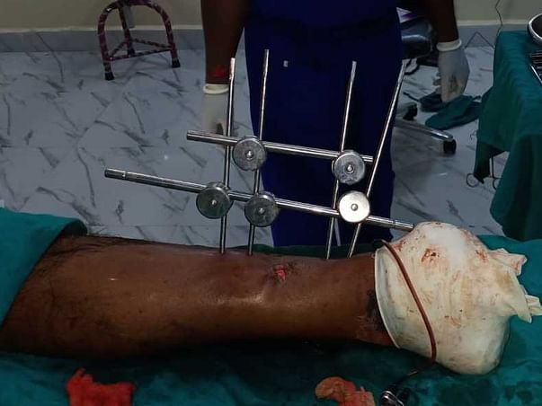 Support Sankar Recover From Accident