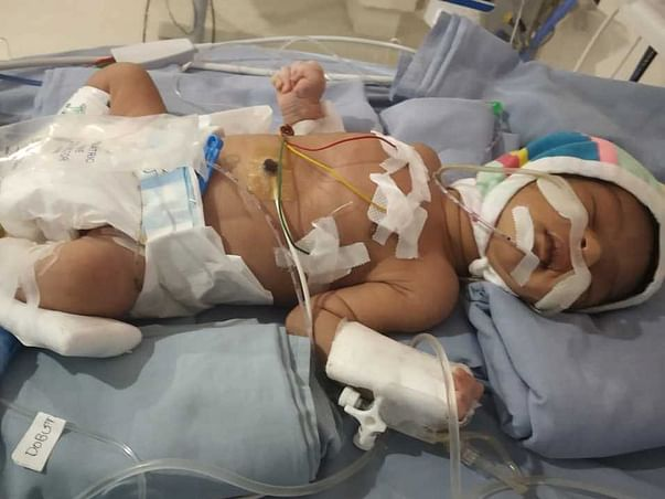 This 15 Days Old Needs Your Urgent Support In Fighting Respiratory Distress Syndrome And Birth Asphyxia