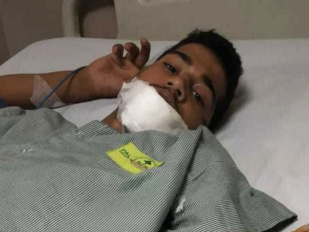My Friend Met With An Accident Please Help Him🙏