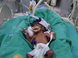 "Help This Baby Get A Second Chance At Life""Kailash Nath"""