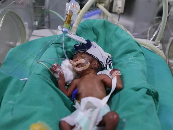 """Help This Baby Get A Second Chance At Life""""Kailash Nath"""""""