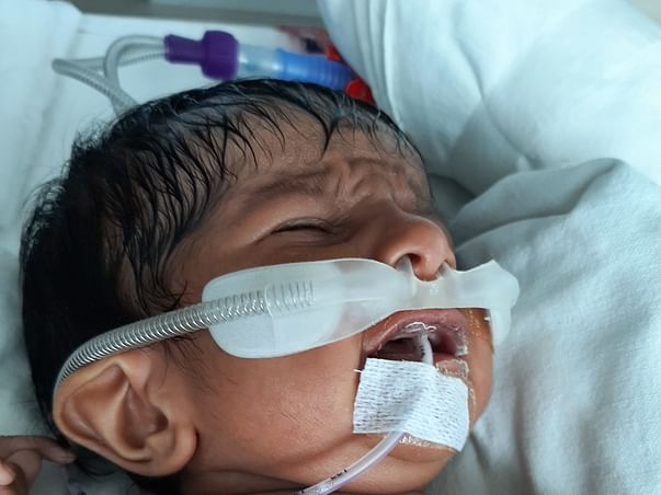 This 1 Month Old Needs Your Urgent Support In Fighting Heart Hole And Pneumonia