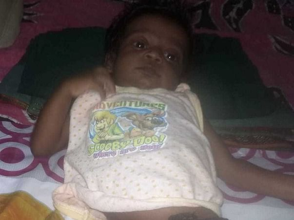 This 5 Months Old Needs Your Urgent Support In Fighting An Atrial Septal Defect (ASD) (Hole In Heart)