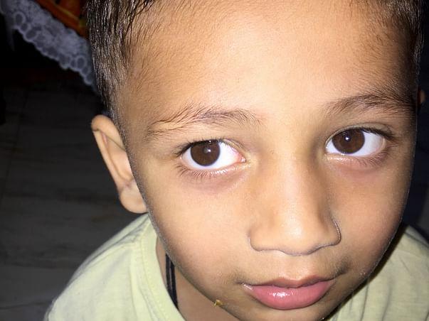 My Son Is Struggling With Retinoblastoma, Help Him