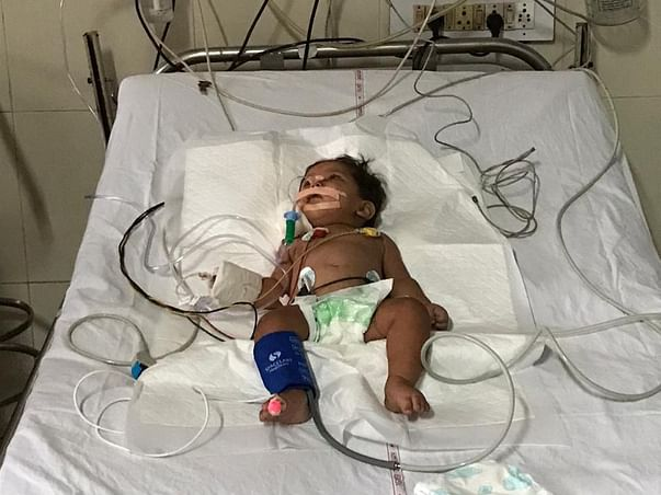 Help Little Arohi To Survive And Live A Normal Life