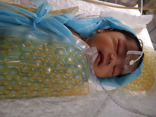 3 Days Old Baby Of Anusha Needs Your Help Fight Perinatal Asphyxia