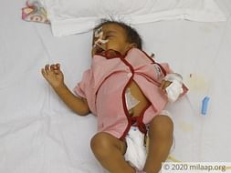 Support little Poorvi fight against metabolic liver failure