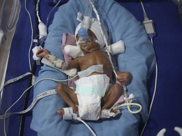 Support Premature Baby Fight Lungs and Blood Infection.