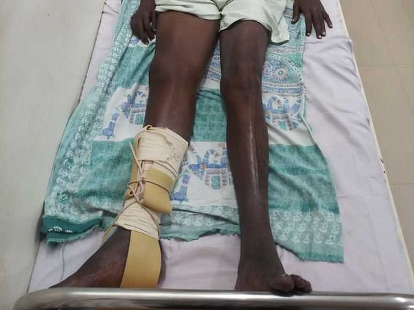 Help my father, Rajendra Prasad, fight Fracture Neck Femur (Right Side)