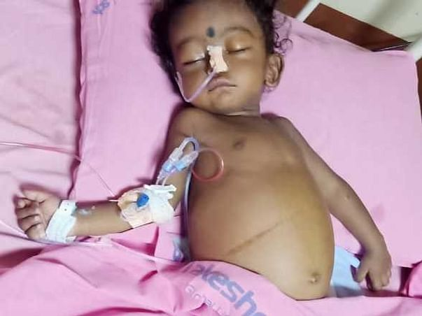 1 Year Old Aswin Needs Your Help In Fight For Liver Faliure And Needed Liver Transplant