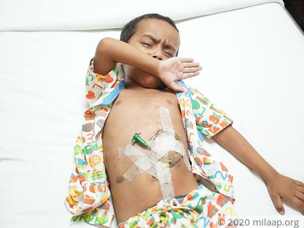 4-Year-Old Boy Drank Acid Instead Of Water, He Needs Urgent Surgery