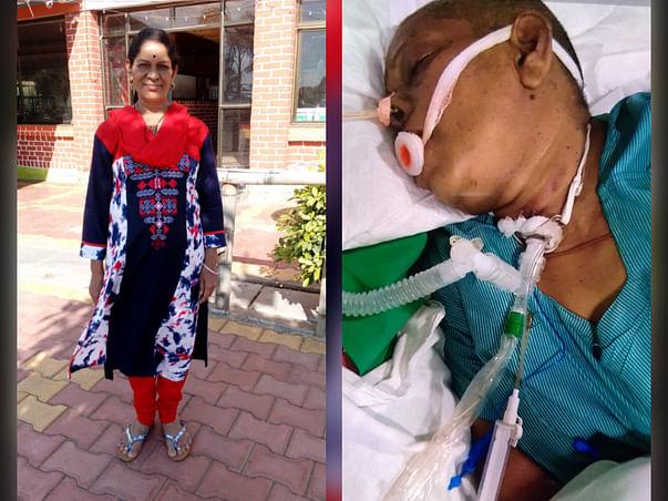 Help my aunty  for brain haemorrhage treatment
