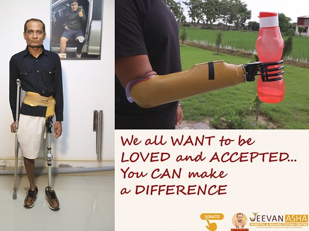 Help disabled people live their life freely with artificial limbs