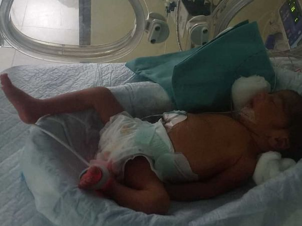 Twin Babies Needs Your Help To Recover!