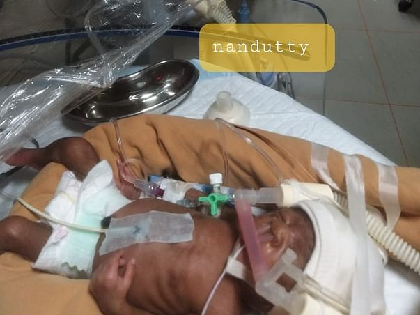 Help my daughter for NICU care who born as twins and now become one.