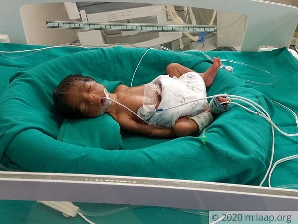 8 days old baby of foranti needs your help fight pre-maturity