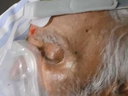 Support My Grandfather Srinivas Murthy Recover From Lungs Infection