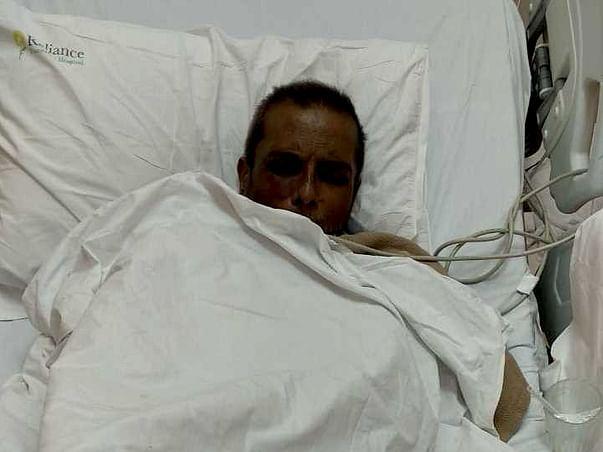 55 years old Abdul Kayyum Shaikh needs your help fight liver cirrhosis