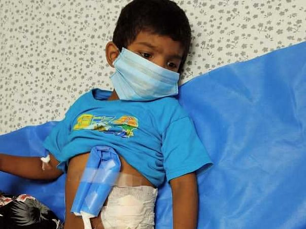 Am Naresh N My son Struggling with Chronic Kidney disease(CKD)